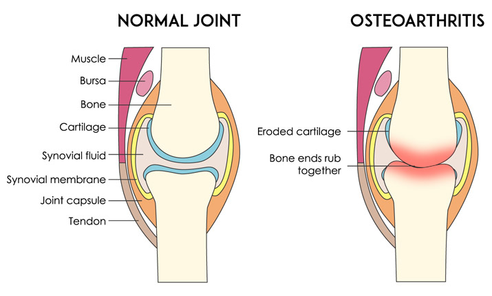 normal joint versus arthritis