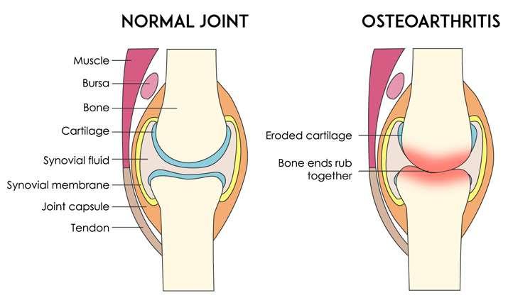 normal joint versus arthritis